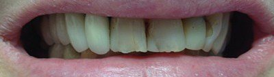 Decayed and damaged front teeth