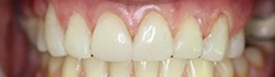 Closeup of beautiful shaped and colored healthy smile