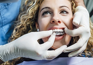 Woman visiting dentist for Invisalign in Ware
